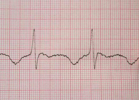 cardioid: ECG # 2