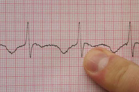 cardioid: ECG # 3 (con el dedo)