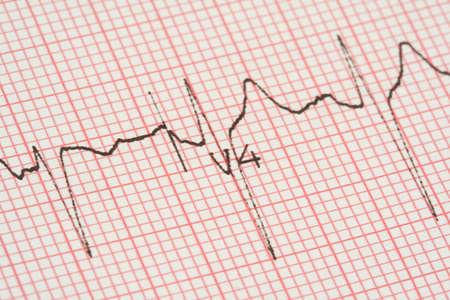 cardioid: ECG gr�fico  Foto de archivo