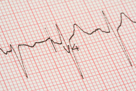 heartache: ecg graph