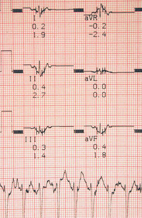 cardiological tests results photo
