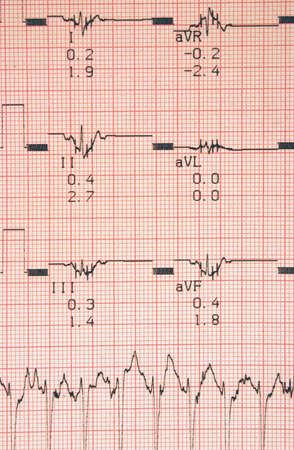 cardioid: Resultados de las pruebas cardiol�gicas  Foto de archivo