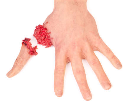artificial human hand with cut out finger on white background Stockfoto