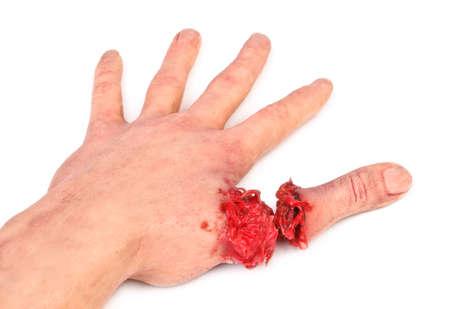 herida: mano artificial humana con el dedo cortado en el fondo blanco