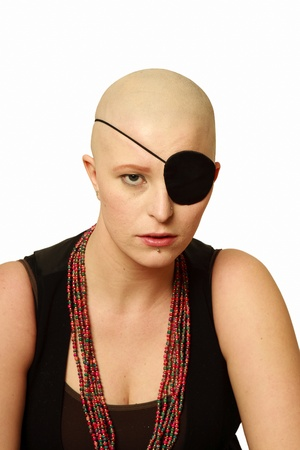 Studio shot of a bald girl with an eye patch