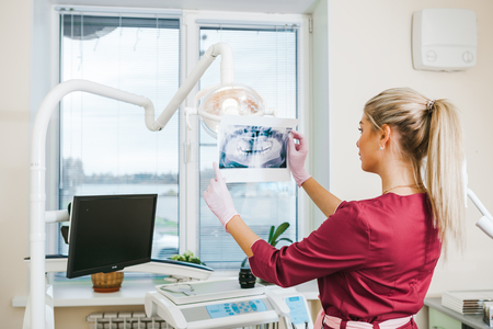 Panoramic dental X-Ray in hand of woman dentist, dental office