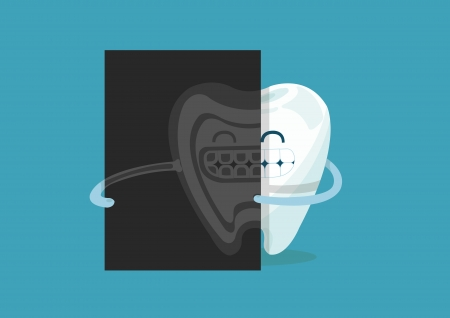 x-ray tooth