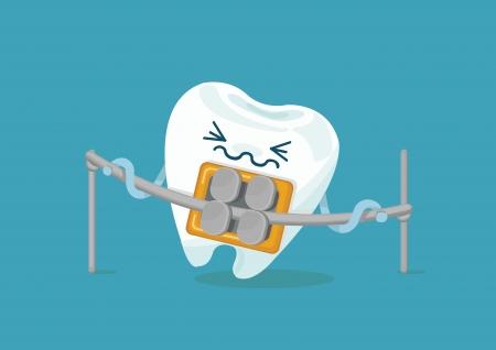 braces tand Vector Illustratie