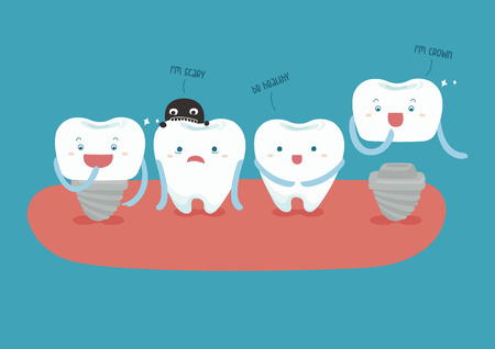 dental implant vector 免版税图像 - 34784393