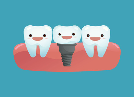 maxilla: Tooth implant