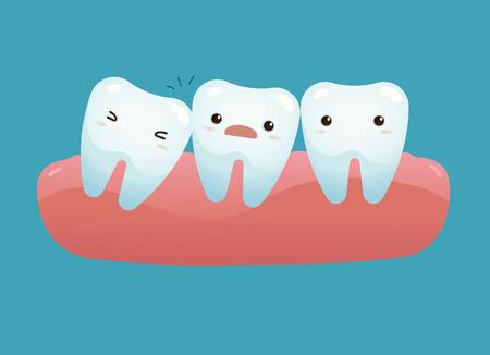 Impacted tooth Stock Illustratie