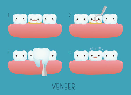 veneer: Veneer tooth of dental