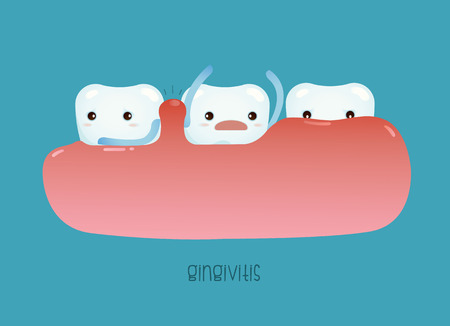 dentist cartoon: Gingivitis of dental vector Illustration