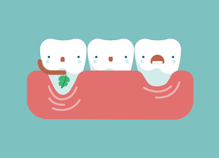 Gingival recession ,dental concept