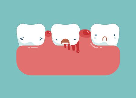 dental treatment: Gingivitis and blood ,dental concept Illustration