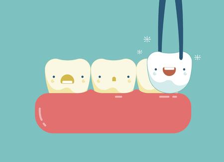 Veneers teeth of dental concept Stock Vector - 55774482