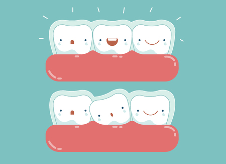 Invisible braces ,dental and tooth concept