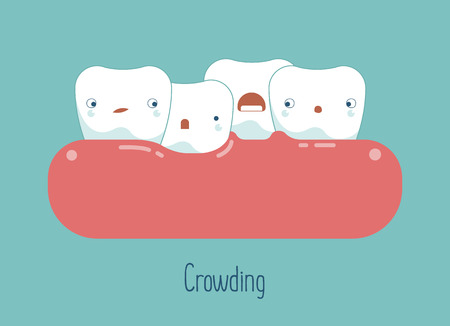 overcrowding: Crowding teeth ,dental concept