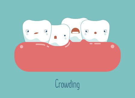 El hacinamiento dientes, el concepto dental