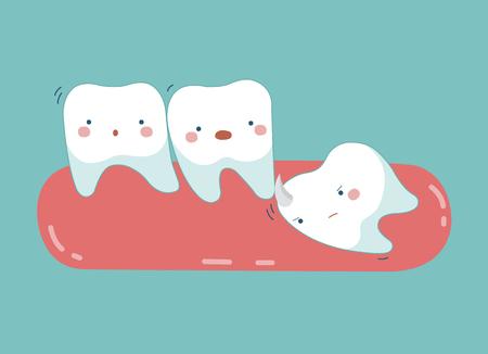 Ząb mądrości naciskają inne zęby, zęby i zęby pojęcie stomatologiczne