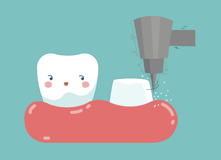 implantation: Dental crown installation process , tooth and teeth of dental concept Illustration