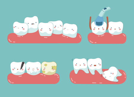 Check up decayed tooth , Wisdom tooth of dental set