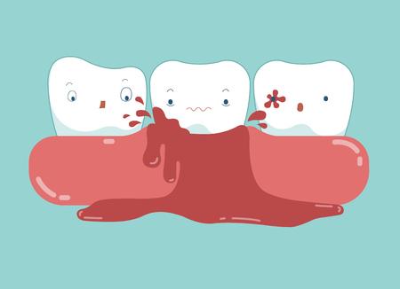 Gengivite del vettore dentale e sanguigno