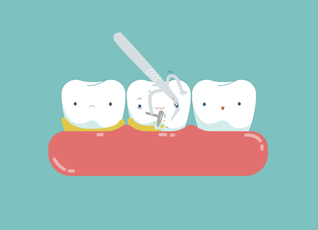 Equipment of dental is cleaning tooth for good healthy.