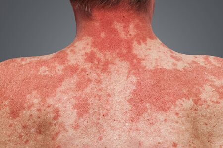 Huidallergie op het menselijk lichaam. Huidziektes. Allergisch symptoom, reactie op alcohol
