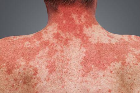 Skin allergy on the human body. Skin diseases. Allergic symptom, reaction to alcohol