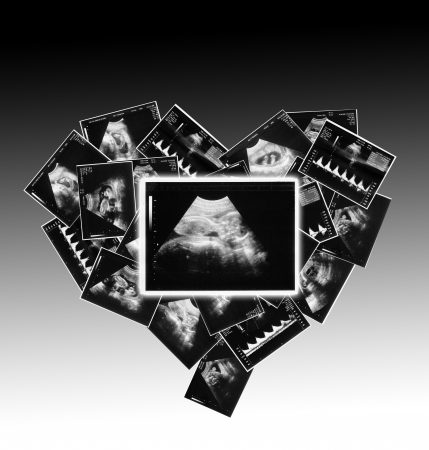 profile picture: a small child on the ultrasound image Stock Photo