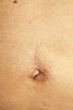 Scar after surgery to remove an umbilical hernia photo