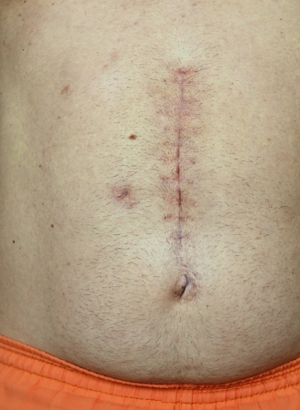 healed: Successfully healed vertical scar from hernia surgery alba