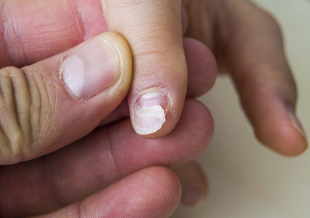 Nail Diseases In Children Small Babies Stock
