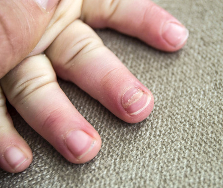 Nail Diseases In Children Small Babies Stock Photo