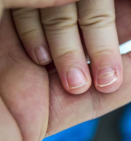 Nagelerkrankungen bei Kindern, Nagelerkrankungen bei Kleinkindern,