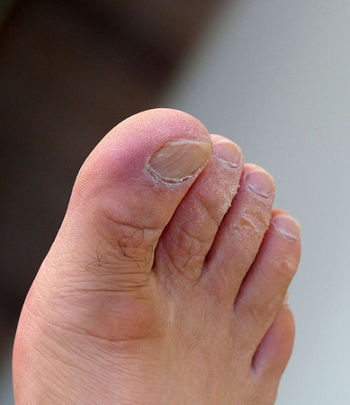 foot and fingers close-up