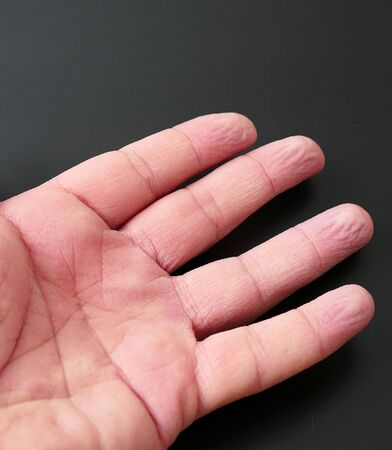 wrinkles of fingers left in the water, wrinkled fingertips due to water, Stock Photo