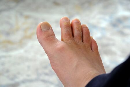 fungal disease on the toes, fungus formation on the toes, human foot and fungus,