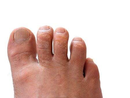 a type of fungal disease on the toes, skin diseases of the feet, Stock Photo