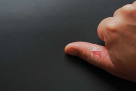 skinning skin between the fingers, the hands of one person injured, Stock fotó