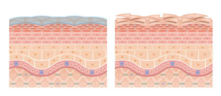 Cross section of the skin 13 front No commentary