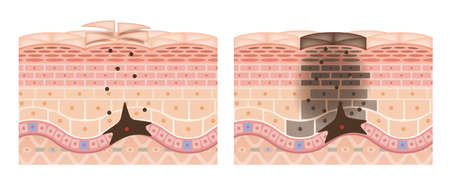 Cross section of the skin 13 front No commentary Vecteurs