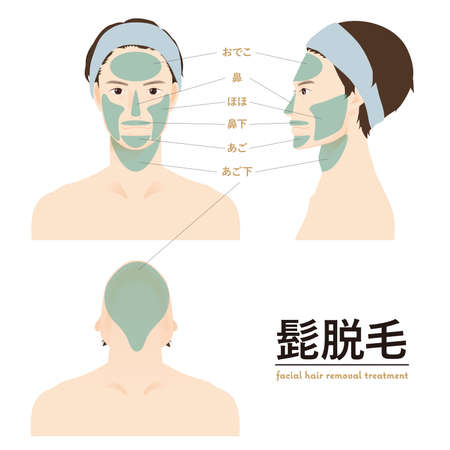 Laser hair removal male 1