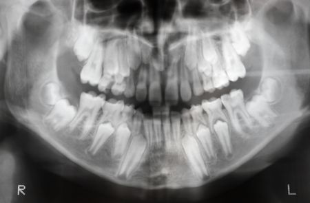 x-ray of jaw with two pairs of teeth (milk teeth and regular teeth), soft focus