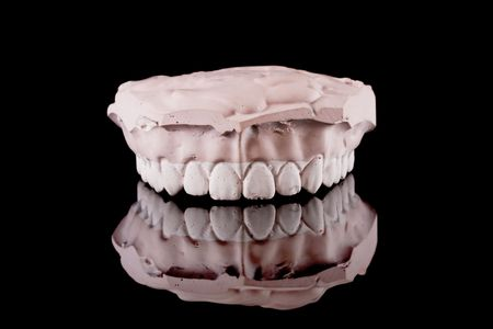 prothesis: gypsum model of a human teeth on black background