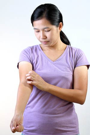 Asian Thai woman scratching her arm. Stock Photo