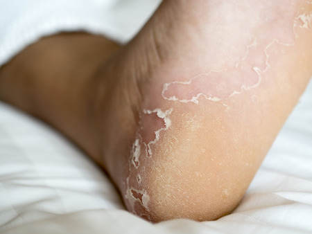 woman foot: Peeling skin Stock Photo