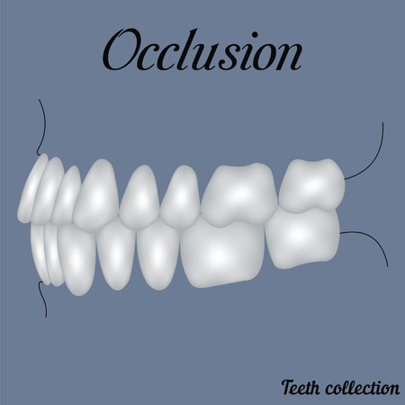 occlusion side view - bite, closure of teeth - incisor, canine, premolar, molar upper and lower jaw. illustration for print or design of the dental clinic Ilustração