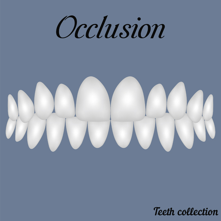 occlusion clenched teeth - bite, closure of teeth - incisor, canine, premolar, molar upper and lower jaw. illustration for print or design of the dental clinic Ilustração